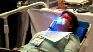 Teeth Whitening Procedures Compared: Dentist Procedures vs DIY Procedures