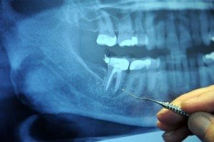 root-canal-x-ray