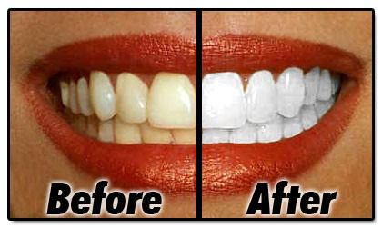 teeth-whitening-products