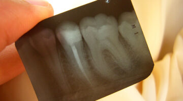 Root Canal Procedure: What It's Like To Get A Root Canal (…I've Had 3!)